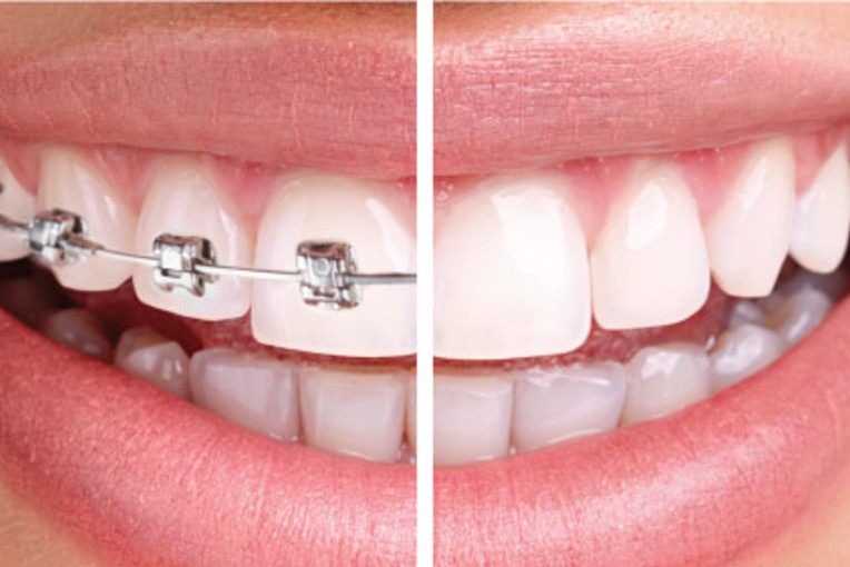 Invisalign Services In Staten Island Get
