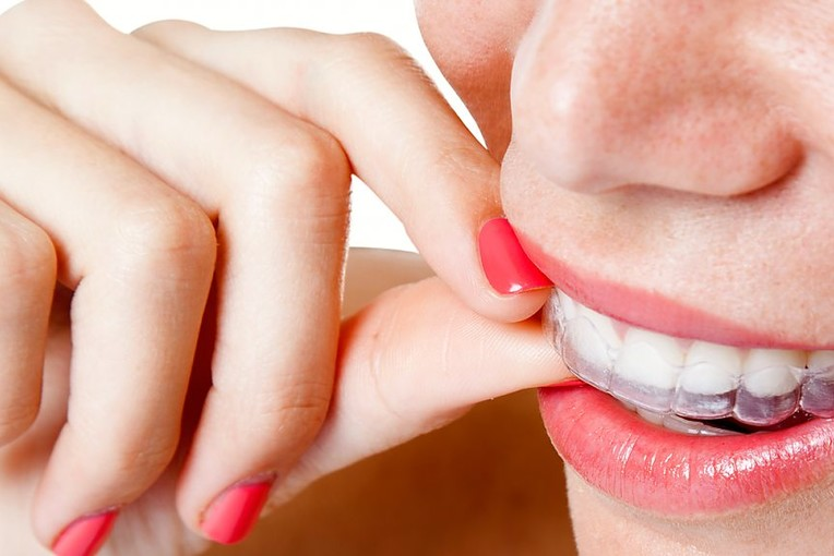 Top Invisalign Dentist in NYC | Manhattan Invisalign ...